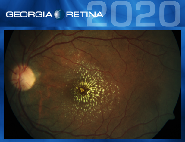 Example shot of the 2020 Georgia Retina calendar.
