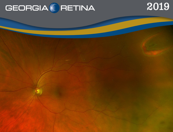 Example shot of the 2019 Georgia Retina calendar.